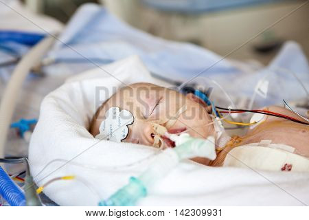 Anesthesia during heart surgery on child, intensive care.