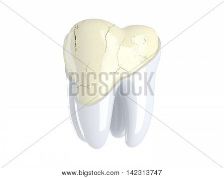 Cracks in the tooth. Restoration and renovation of the tooth enamel. 3D render
