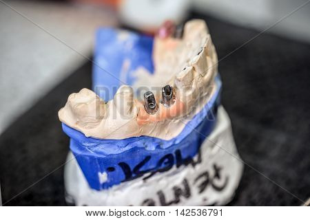 Dental implants in dental model, denture concept