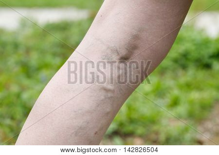 Woman with painful varicose and spider veins on her legs. Vascular disease varicose veins problems painful unaesthetic medical condition concept.