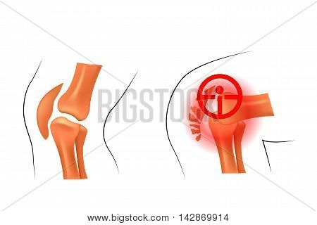 illustration of the kneecap dislocation and fracture. traumatology and orthopedics