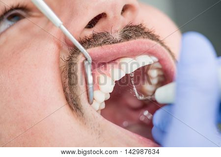 Removing plaque in dentist office, color image, horizontal
