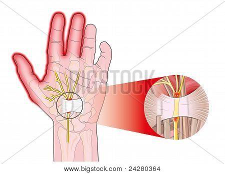 Ligamento carpiano transversal