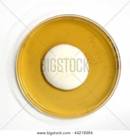 agar plate with microorganisms