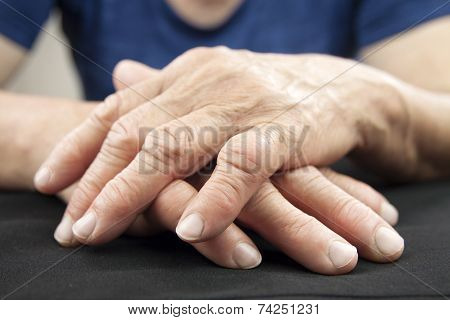 Hand Of Woman Deformed From Rheumatoid Arthritis