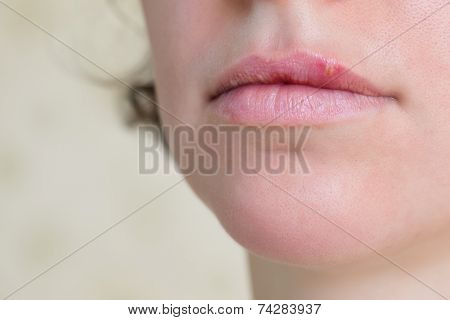 Herpes Virus On Female Lips