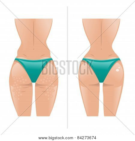 Vector Illustration Of Cellulite And Healthy Skin