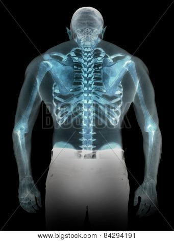 Human Skeleton Under The X-rays Isolated On Black Background