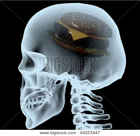 X-ray Of A Head With The Burger Instead Of The Brain