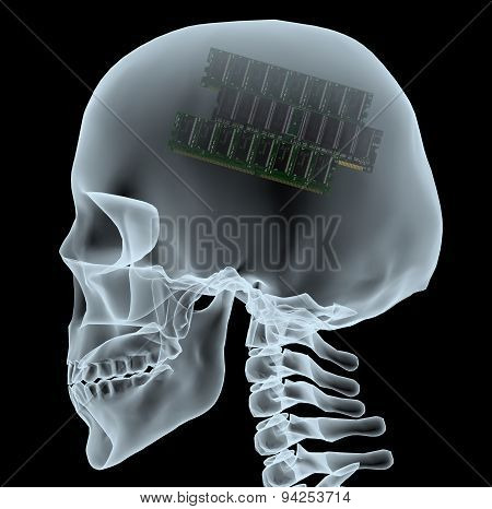 X-ray Of A Head With Electronic Ram Instead Of The Brain