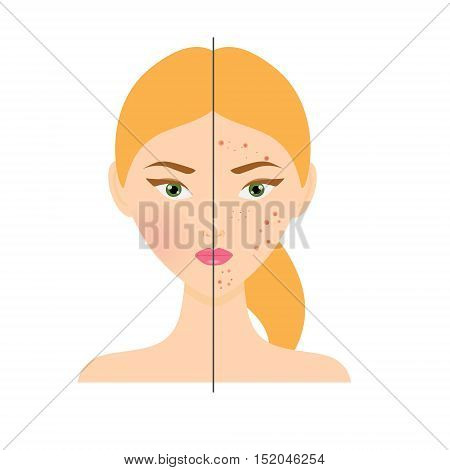 Woman with acne skin disease and healthy skin. Vector illustration