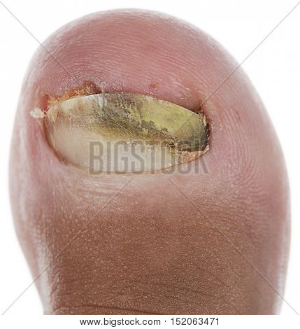 Close up image of left foot toe nail suffering from fungus infection isolated on white background.