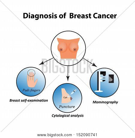 Methods of diagnosis of breast cancer. Mammography, puncture, breast self-examination. A biopsy, cytology. Infographics. Vector illustration on isolated background.