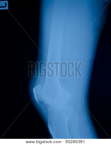 X ray showing right knee osteoarthritis