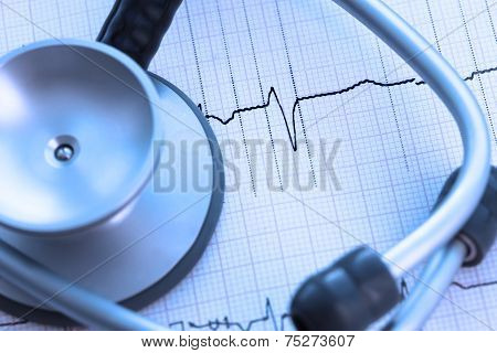 Diagnostics In Cardiology. Stethoscope On Ecg Paper