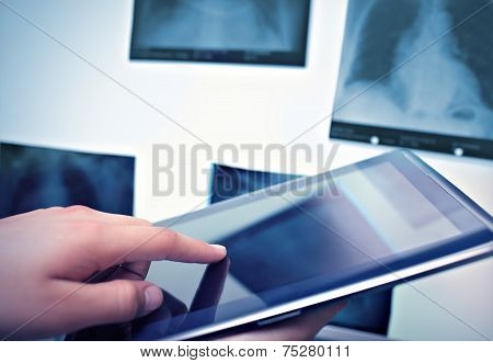 Working With Digital Tablet In Radiology
