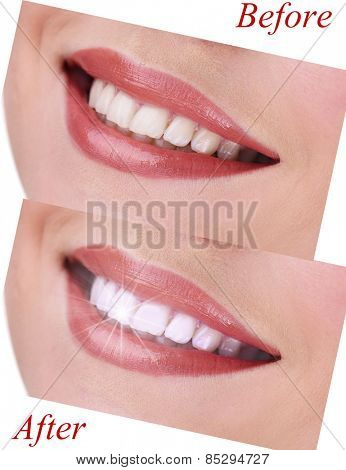 Woman smile before visit dentist and after visit, close up