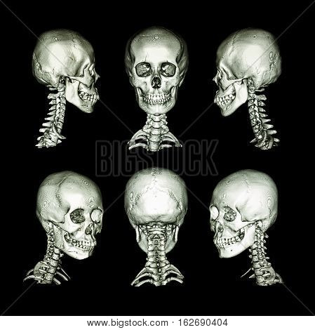 CT scan and 3D image . Normal human skull and cervical spine . all direction