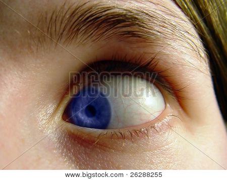 Frau handeln dumm mit ihrem Auge wandte sich in