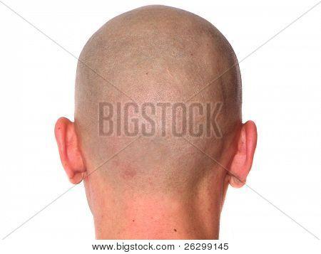 bald-headed guy