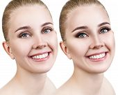 Comparison Close-up Portrait Of Young Woman Before And After Retouch. poster