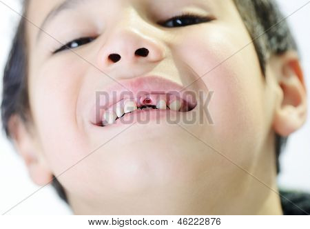 Portrait of cute little boy losing his first tooth