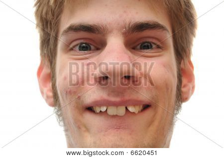 Young Man Smiling Who Needs Braces