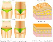 image of body fat  - Woman - JPG