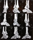 foto of ct scan  - Image of right ankle CT - JPG