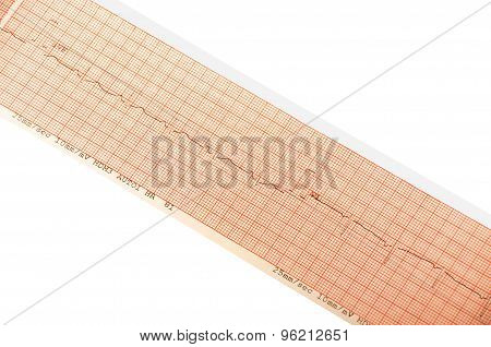 ECG print