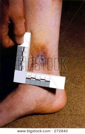 Personenschäden mit Skala