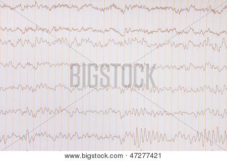 ECG background