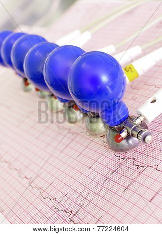 Ecg Electrodes With Suction Cups On The Background Of The Electrocardiogram.
