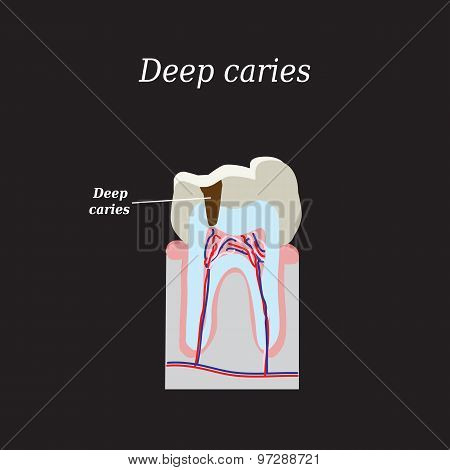Deep tooth decay. Vector illustration on a black background