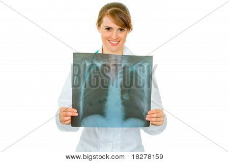 Smiling medical doctor woman holding results of thorax roentgen in hands isolated on white