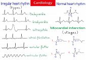 Normal And Pathological Ecg Collection. Shematic Vector Illustration Of Different Types Of Irregular poster