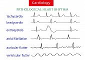 Pathological Ecg Collection. Shematic Vector Illustration Of Different Types Of Irregular Heart Rhyt poster