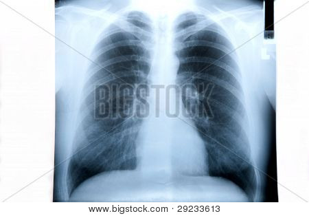 Lung X Ray Image