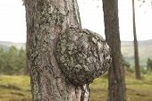 Tumor On Tree