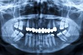 stock photo of mandible  - Panorama x-ray image of a human jaw and a damaged set of teeth, respectively. X-ray image with a light blue tint.