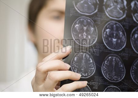 Closeup of a blurred female doctor holding CAT scan