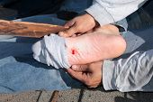 image of toe nail  - A construction worker shows a puncture wound in his foot after stepping on a nail on a construction site - JPG