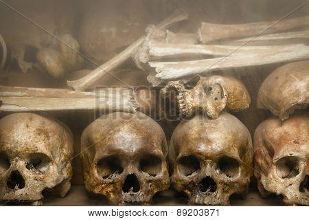 Human Bones