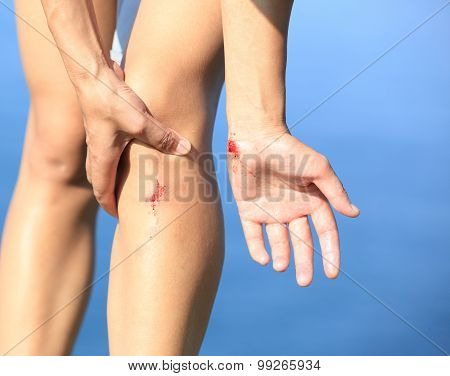 young sporty asian woman hold her sports injured leg
