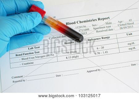 Abnormal renal function test result