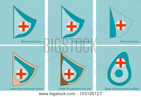 Set of icons for breast surgery