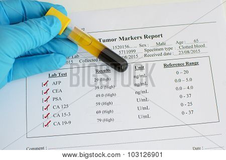 Abnormal tumor marker results
