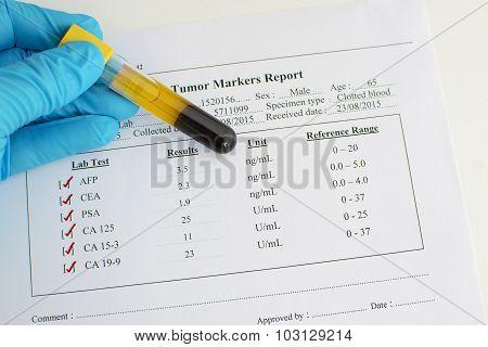 Tumor marker results