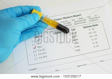 PSA testing result: Normal