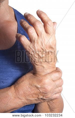 Hand Deformed From Rheumatoid Arthritis